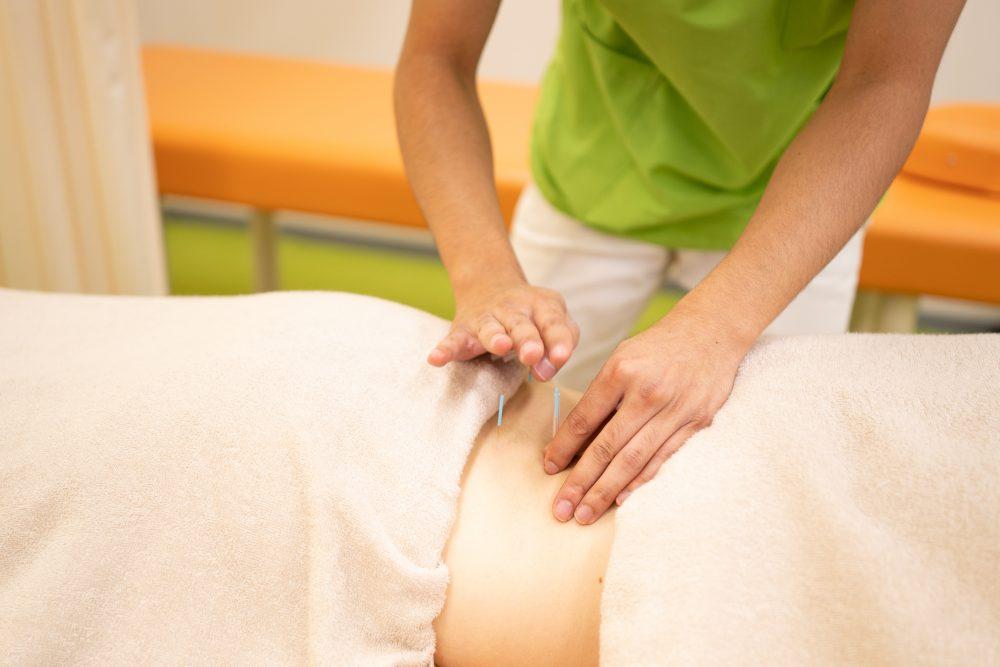 鍼灸治療の効果が期待できる理由